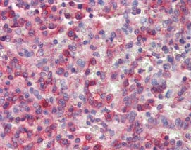 Immunohistochemistry (Formalin/PFA-fixed paraffin-embedded sections) - Anti-NCF4 antibody (ab115855)