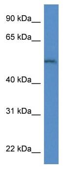 Western blot - Anti-ARSB antibody (ab115894)