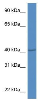 Western blot - Anti-PRDM12 antibody (ab115903)