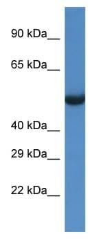 Western blot - Anti-SESN1 antibody (ab115909)