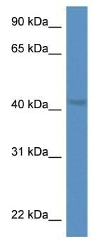 Western blot - Anti-PTK9 antibody (ab115910)