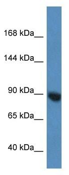 Western blot - Anti-Argonaute 3 / eIF2C 3 antibody (ab115921)