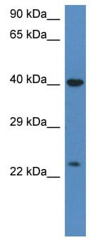 Western blot - Anti-PRSS1 antibody (ab115953)