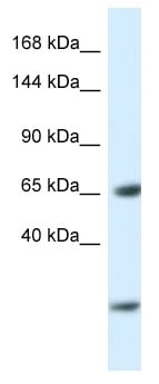 Western blot - Anti-EBF3 antibody (ab116031)