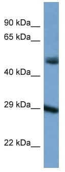 Western blot - Anti-GJC1 antibody (ab116032)