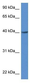 Western blot - Anti-ZDHHC11 antibody (ab116065)