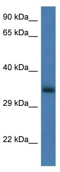 Western blot - Anti-GNPDA1 antibody (ab116067)