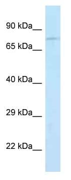 Western blot - Anti-Junctophilin-2 antibody (ab116077)