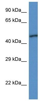 Western blot - Anti-Ubiquinol-Cytochrome C Reductase Core Protein I antibody (ab116091)