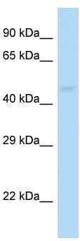 Western blot - Anti-GABA A receptor pi antibody (ab116109)