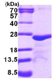 SDS-PAGE - MYL5 protein (His tag) (ab116153)