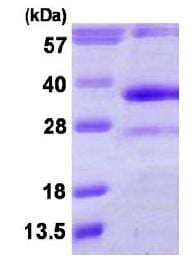 SDS-PAGE - DHRS4 protein (His tag) (ab116155)