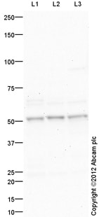Western blot - Anti-Estrogen Related Receptor alpha antibody (ab116164)