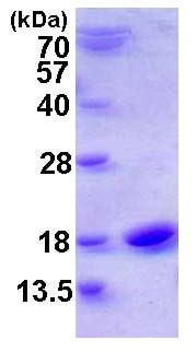 SDS-PAGE - Cystatin SN protein (ab116170)