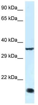 Western blot - Anti-KLF3 antibody (ab116216)