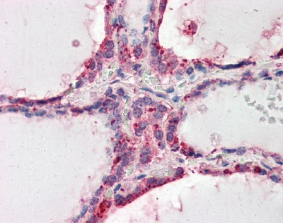 Immunohistochemistry (Formalin/PFA-fixed paraffin-embedded sections) - Anti-Wnt3 antibody (ab116222)