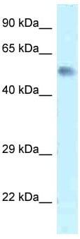Western blot - Anti-Zfp472 antibody (ab116228)