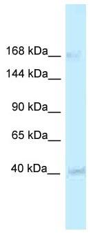 Western blot - Anti-RGD1563533 antibody (ab116233)
