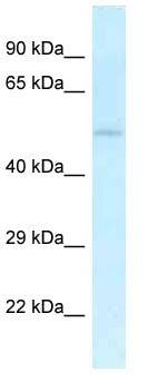 Western blot - Anti-KIST antibody (ab116255)