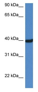 Western blot - Anti-Ornithine Carbamoyltransferase antibody (ab116265)