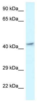 Western blot - Anti-MECR antibody (ab116290)
