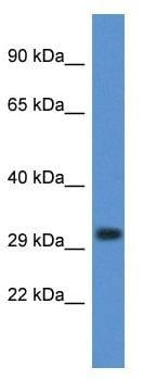 Western blot - Anti-DNase gamma antibody (ab116297)