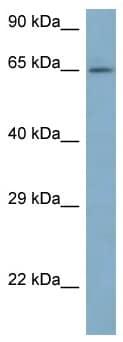 Western blot - Anti-ARFGAP3 antibody (ab116302)