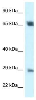 Western blot - Anti-SPC25 antibody (ab116328)