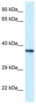 Western blot - Anti-PSTPIP2 antibody (ab116338)