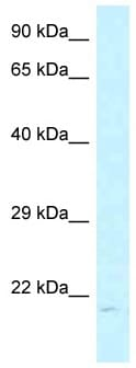 Western blot - Anti-ARMER antibody (ab116357)
