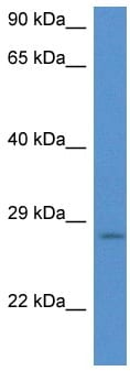 Western blot - Anti-integrin beta 4 binding protein antibody (ab116364)