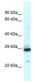 Western blot - Anti-PGAM1 antibody (ab116461)
