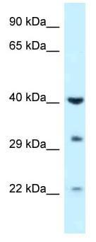 Western blot - Anti-GALK1 antibody (ab116462)