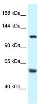 Western blot - Anti-TBCD antibody (ab116519)
