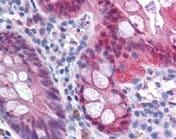 Immunohistochemistry (Formalin/PFA-fixed paraffin-embedded sections) - Anti-Galectin 3 antibody (ab116708)