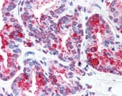 Immunohistochemistry (Formalin/PFA-fixed paraffin-embedded sections) - Anti-Wnt5b antibody (ab116710)