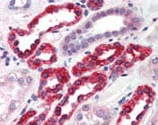 Immunohistochemistry (Formalin/PFA-fixed paraffin-embedded sections) - Anti-GGA3 antibody (ab117073)