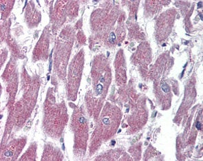 Immunohistochemistry (Formalin/PFA-fixed paraffin-embedded sections) - Anti-GPCR GPR116 antibody (ab117107)