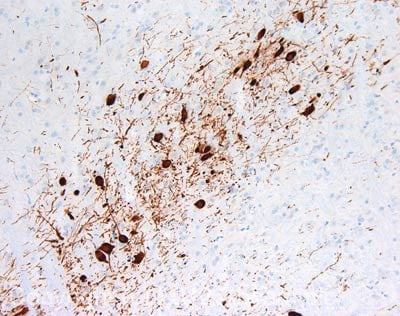 Immunohistochemistry (Formalin/PFA-fixed paraffin-embedded sections) - Anti-Tyrosine Hydroxylase antibody (ab117112)