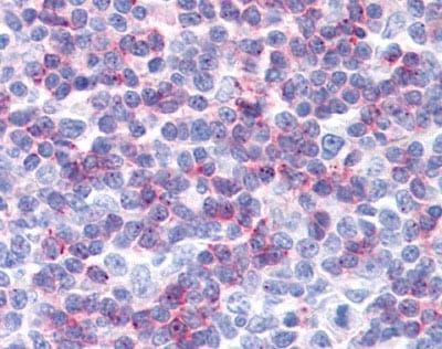 Immunohistochemistry (Formalin/PFA-fixed paraffin-embedded sections) - Anti-IFITM1 antibody (ab117519)