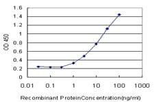 Sandwich ELISA - Anti-MeCP2 antibody [4B6] (ab117567)