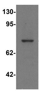 Western blot - Anti-PALM3 antibody (ab117646)