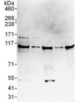 Western blot - Anti-FLJ20097 antibody (ab117763)
