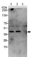 Immunoprecipitation - Anti-ZNF444 antibody (ab117812)