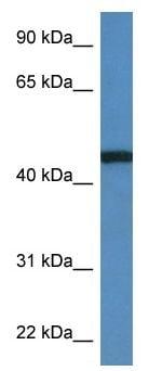 Western blot - Anti-RRS1 antibody (ab117846)