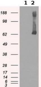 Western blot - Anti-Glucokinase antibody [3E3] (ab117856)