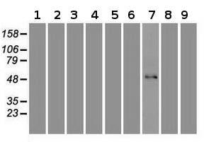 Western blot - Anti-FOXA1 antibody [3A8] (ab117857)