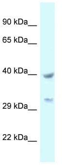 Western blot - Anti-STOML2 antibody (ab117876)