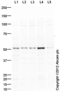 Western blot - Anti-LXR beta antibody (ab117881)