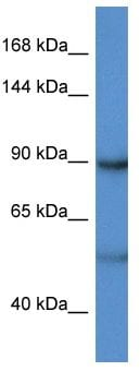 Western blot - Anti-Lipin 2 antibody (ab117933)